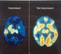 brain depressed vs not depressed