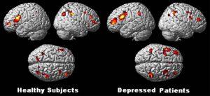 healthy vs depressed brain
